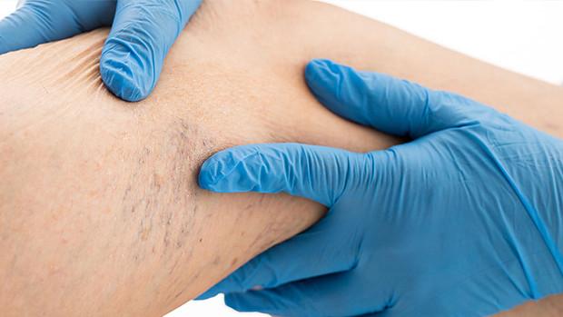 Cirurgia de Varizes Convencional e Endovascular